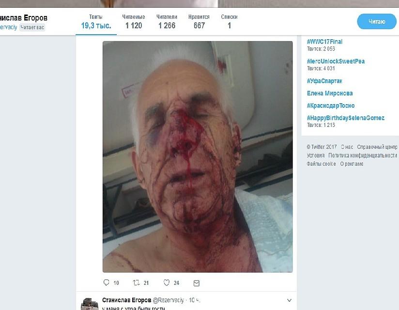 Неизвестные вторглись вдом воронежского оппозиционера иизбили его битами