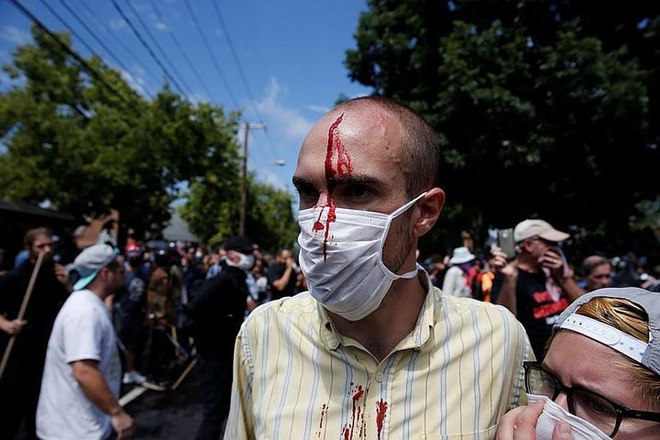 Дональд иМеланья Трамп призвали кпрекращению беспорядков вШарлотсвилле