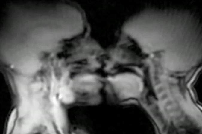 видео как выглядит поцелуй изнутри