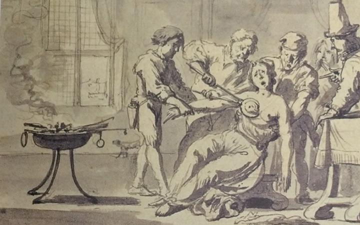 Эта старинная гравюра дает представление о том, как удаляли опухоль груди в XVIII веке