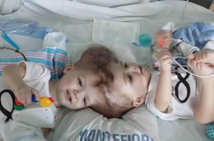 Так выглядели Джейдон и Эниас Макдональды до операции.