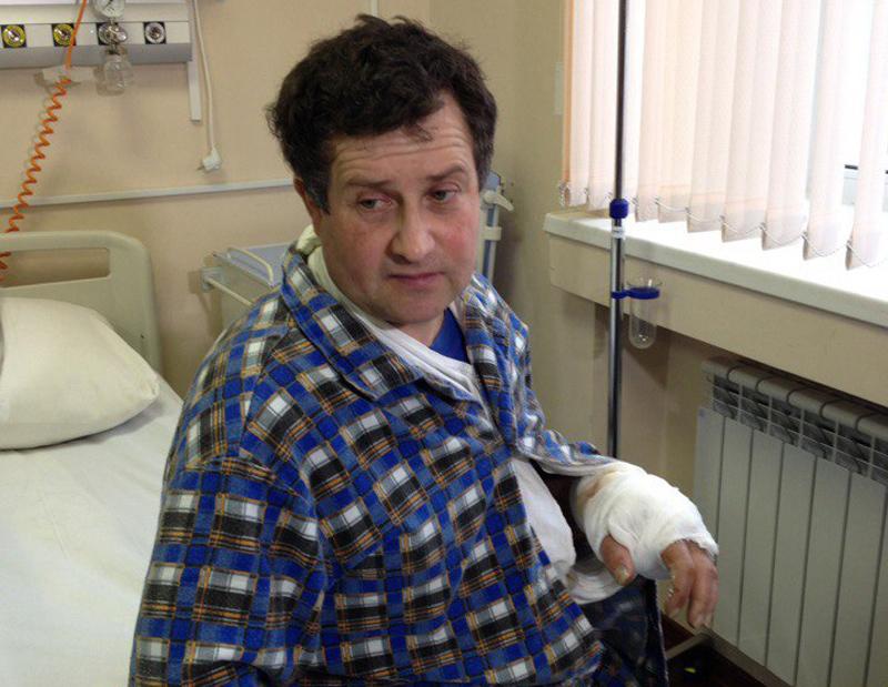 Челябинские медработники пришили рабочему его отрезанную руку