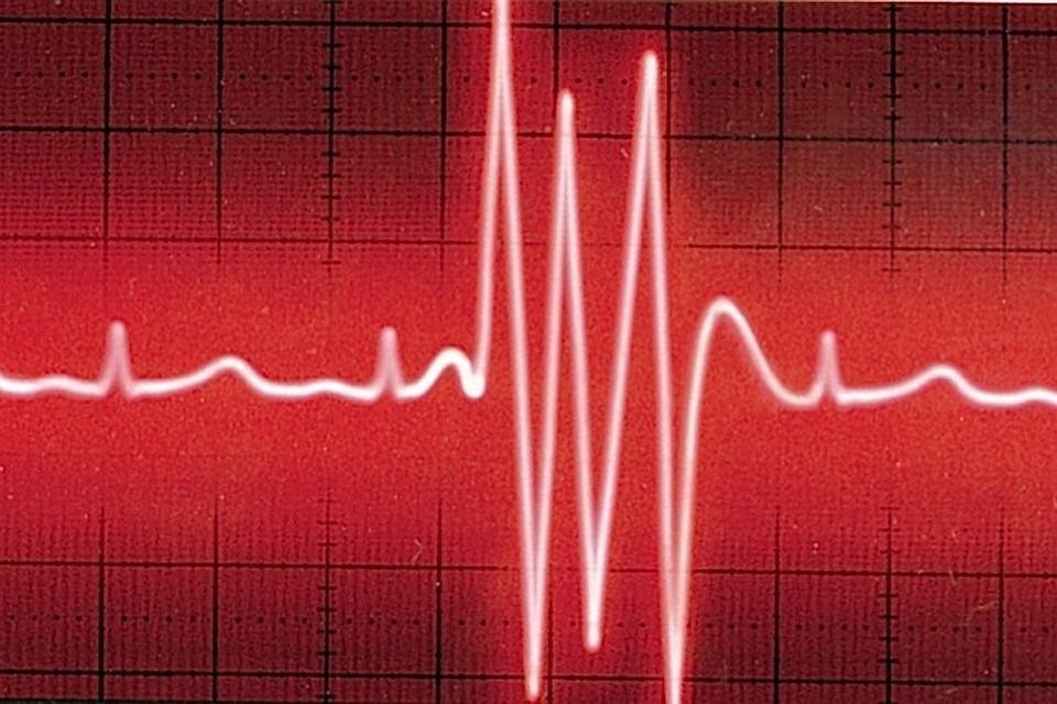 Как избежать развития сердечно-сосудистых заболеваний