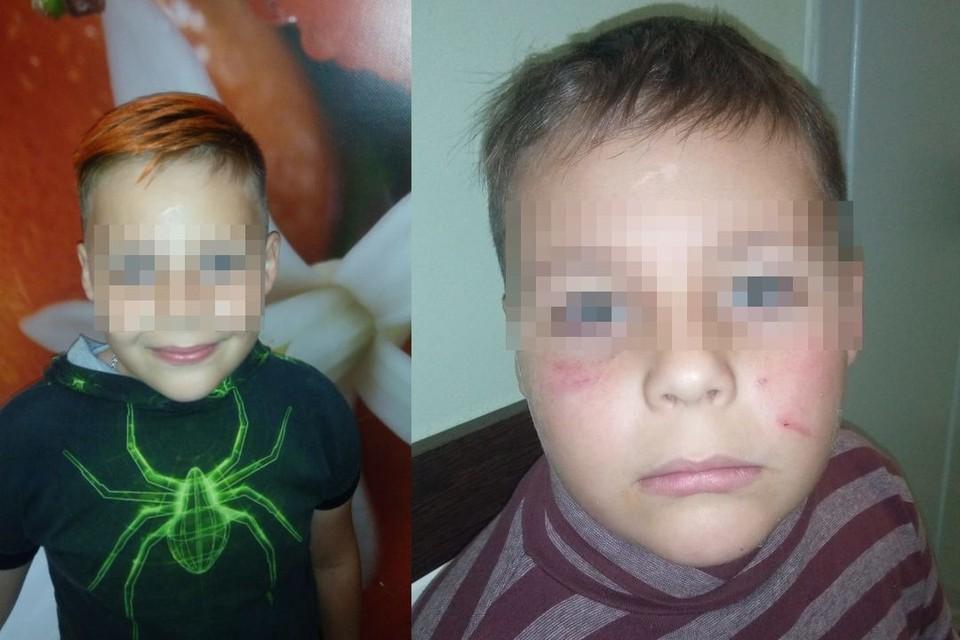 Рома до и после избиения сверстниками. Фото: личный архив.