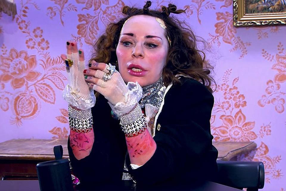 Жанна Агузарова сделала косметическую операцию. Фото: кадр шоу «Музыкалити»