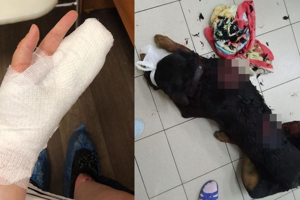 И собака, и девушка получили глубокие раны. Фото: личный архив.