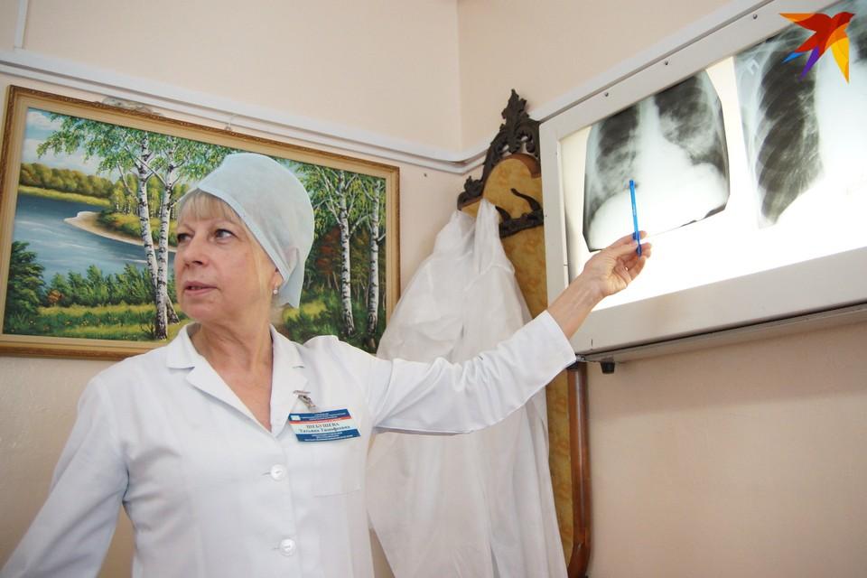 Татьяна Шебушева - уже 20 лет главный внештатный пульмонолог области