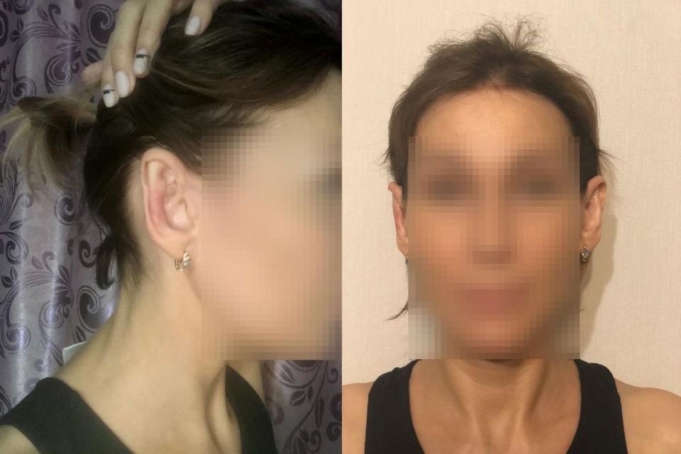 Ухо девушки после операции стало походить на эльфийское. Фото: личный архив.