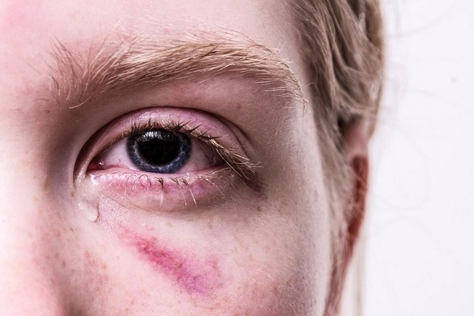 Пять детей получили ожоги глаз из-за бактерицидных ламп