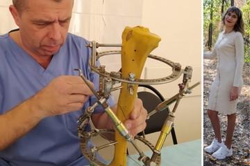 Врачи провели уникальную операцию и помогли жительнице Ростова с деформацией стоп