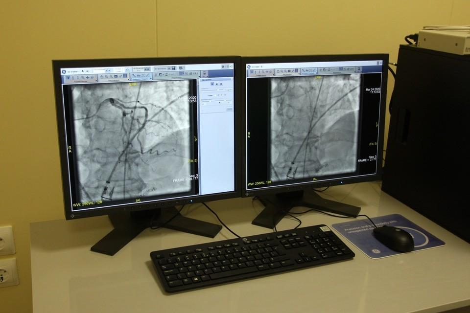 Исследование направлено на глубокое изучение хронических заболеваний вен. Фото: минздрав Рязанской области.