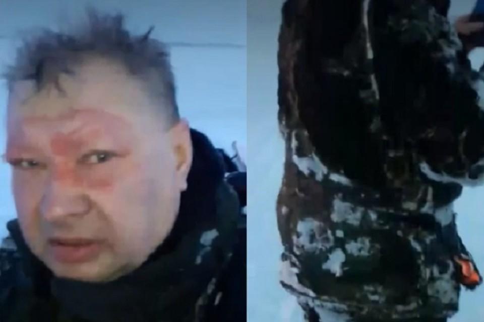 Рыбак получил ожоги на горящей реке Оби в Нижневартовске 6 марта 2021, где произошла авария на трубопроводе. Фото: скриншот с видео