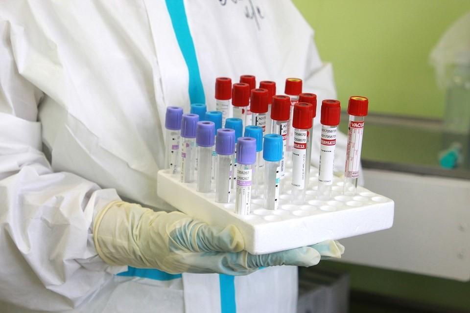 108 случаев заражения коронавирусом подтвердилось в Иркутской области за сутки