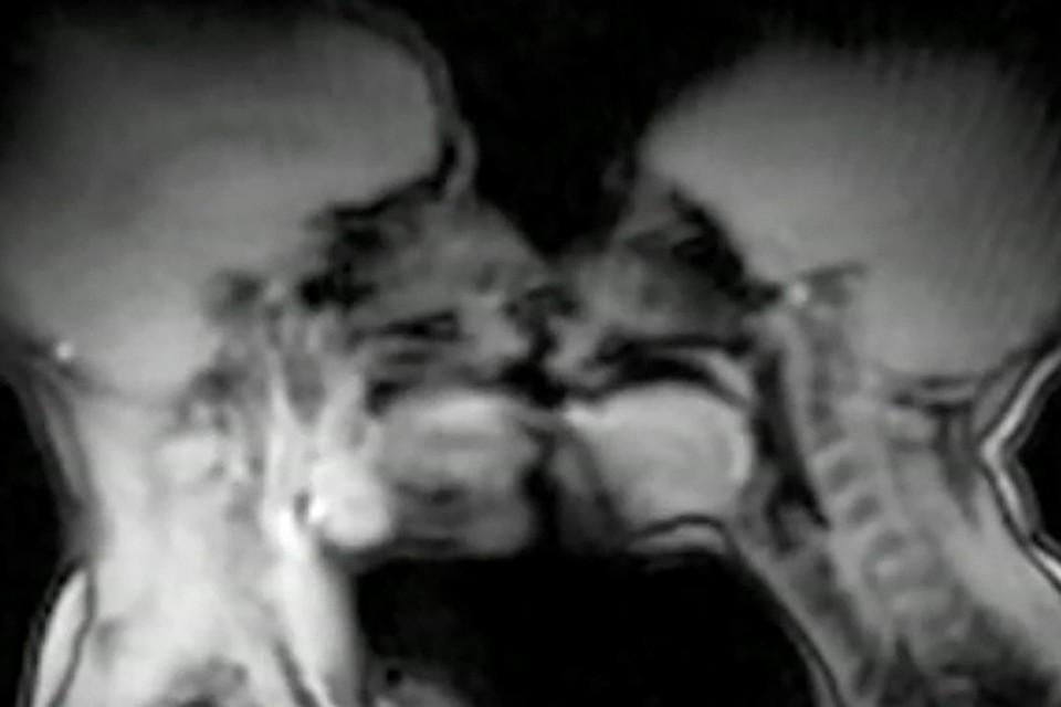 Как выглядит сэкс в нутри человека фото фото 402-643