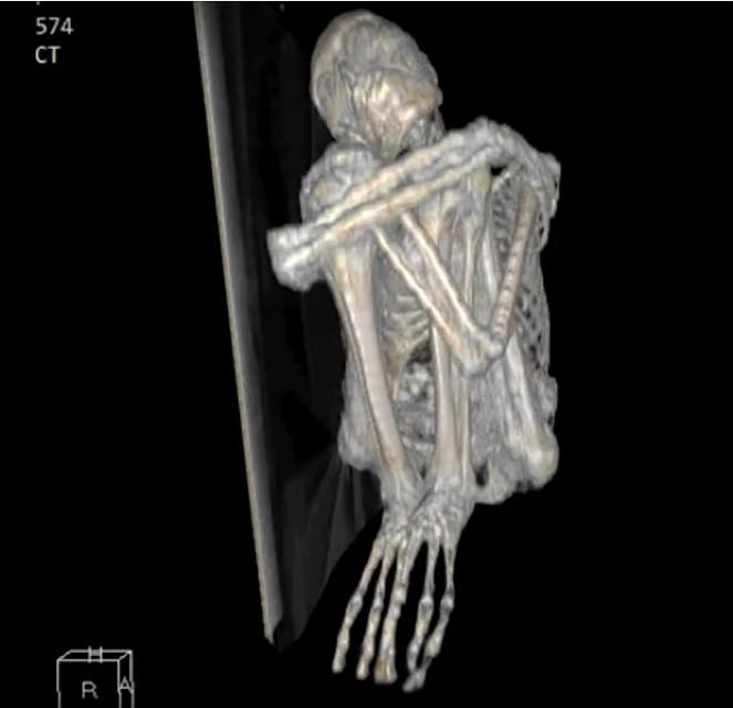 Изображении мумии Марии в томографе.