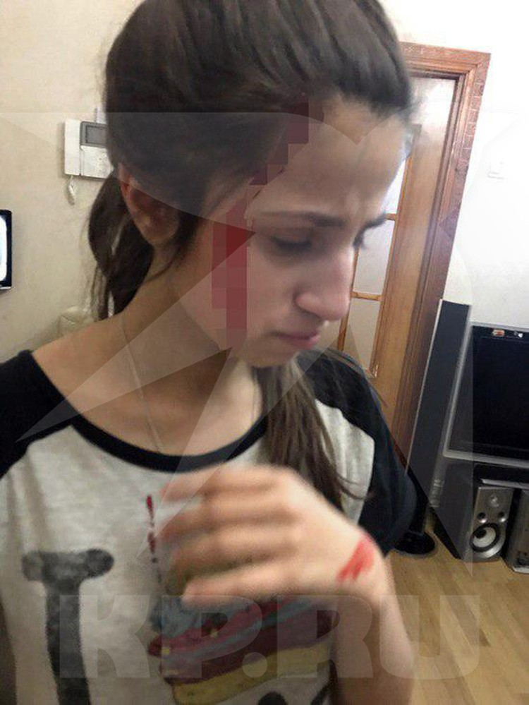Мария сфотографировала окровавленную Ангелину, после очередного избиения отцом.