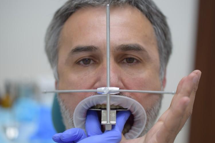Измерение параметров прикуса при помощи специального аппарата. Фото: Smile-at-Once
