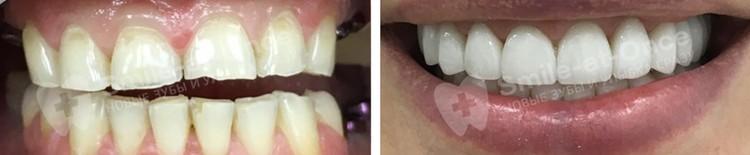 Виниры полностью меняют внешний вид зубов, возвращая им былую привлекательность. Фото: Smile-at-Once