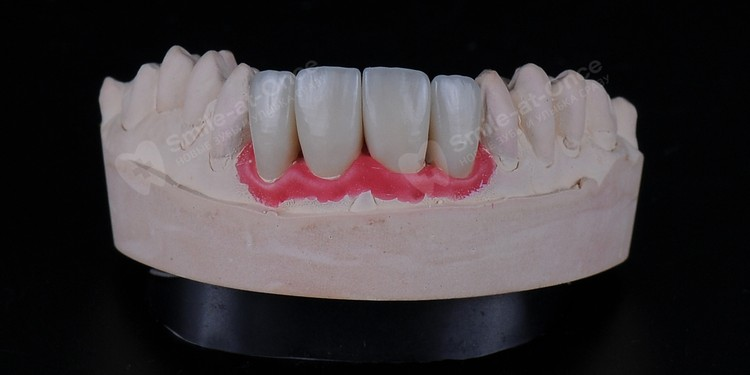 Так выглядят коронки из диоксида циркония, которые создаются с помощью компьютерных технологий CAD/CAM. Фото: Smile-at-Once
