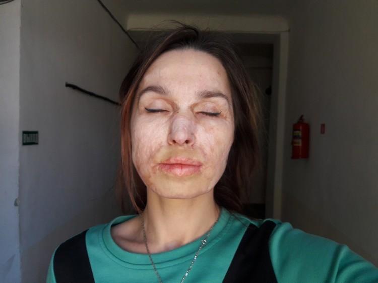 После шести десятков операций на лице еще есть шрамы. Фото: личный архив