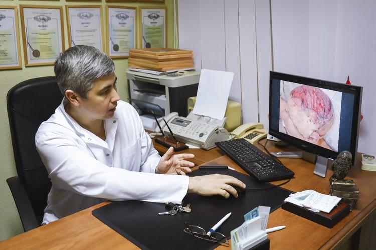 До этого в мировой медицинской практике такие большие тотальные дефекты не восстанавливались за одну операцию. Фото: НИИ-ККБ №1.
