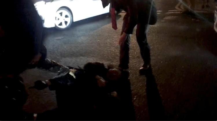 Чиновница упала и повредила руку