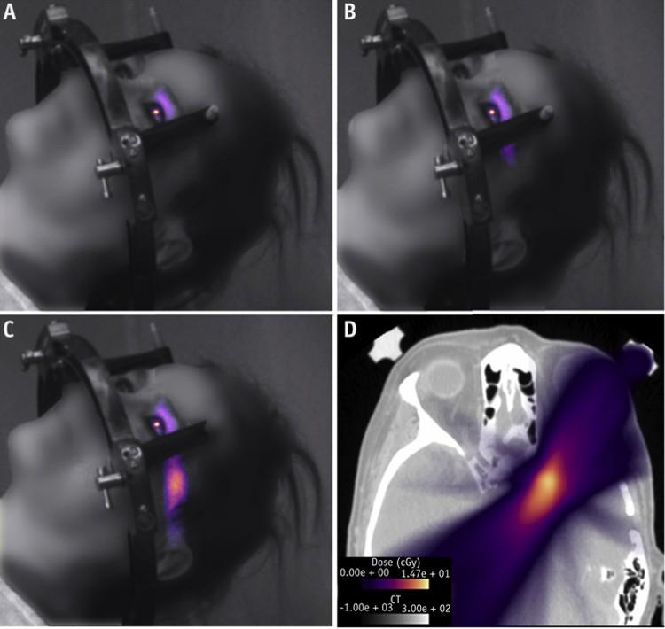 Глаза испускают лучи разной интенсивности. Справа внизу светящийся глаз на изображении в томографе.