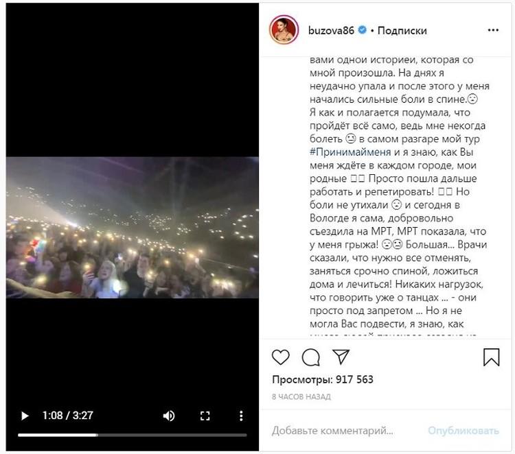 Перед концертом в Вологде певица получила травму спины. Фото: instagram.com/buzova86