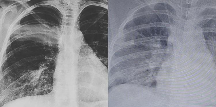 Слева ранняя стадия заболевания коронавирусом, справа пораженные легкие - через три дня