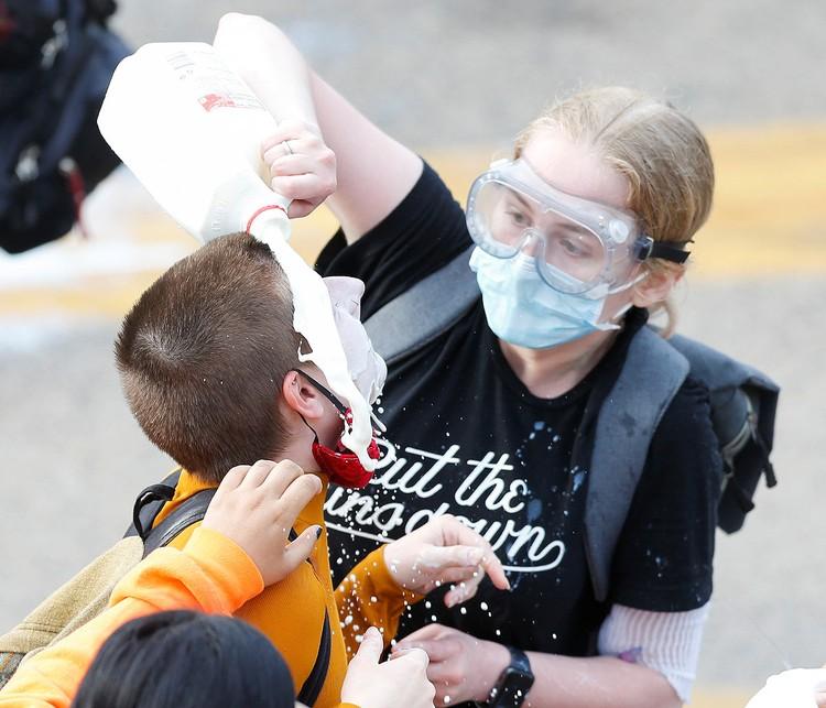 Пострадавшим от слезоточивого газа промывают глаза молоком.