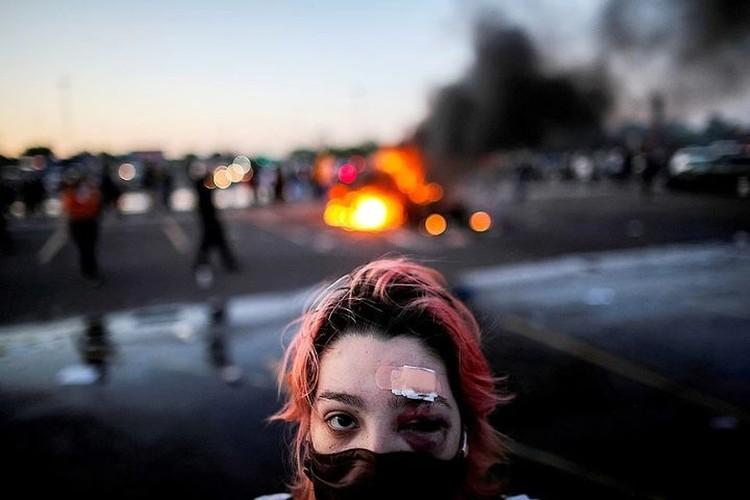 Многие получили травмы во время противостояния. Фото: REUTERS.