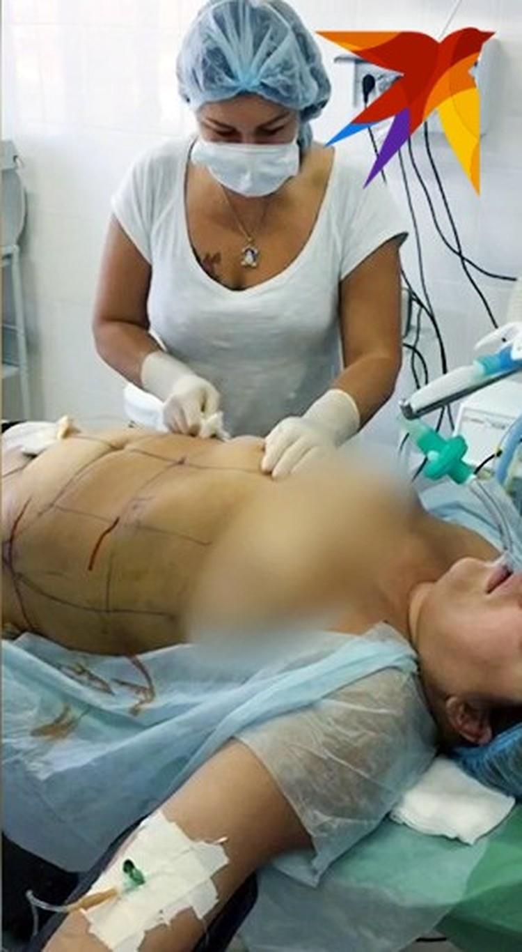 На операциях хирург не считала нужным надеть халат.