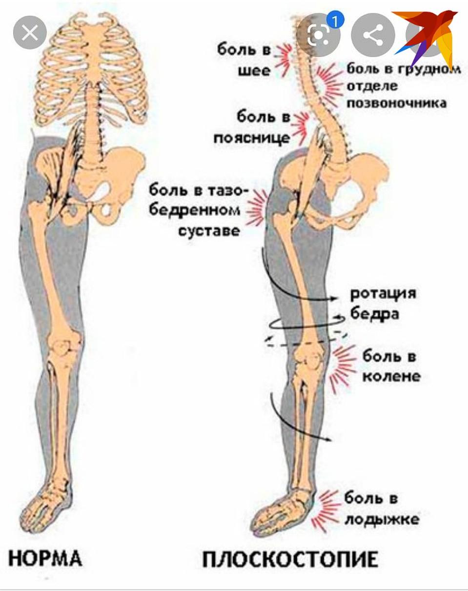 все мышцы и суставы тела болят simptomele durerilor articulare de frisoane