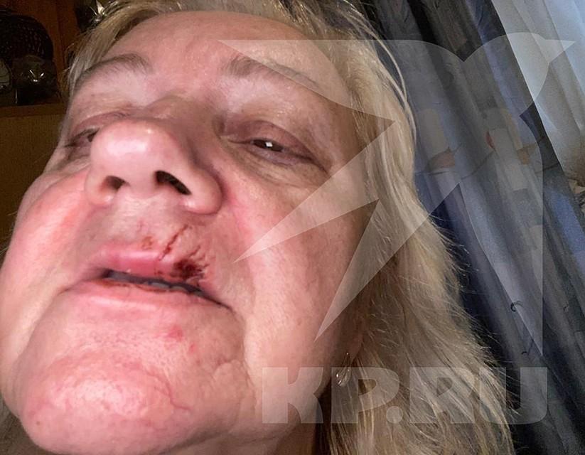 Хозяйка, пытаясь спасти редкого питомца, тоже пострадала от зубов зверя