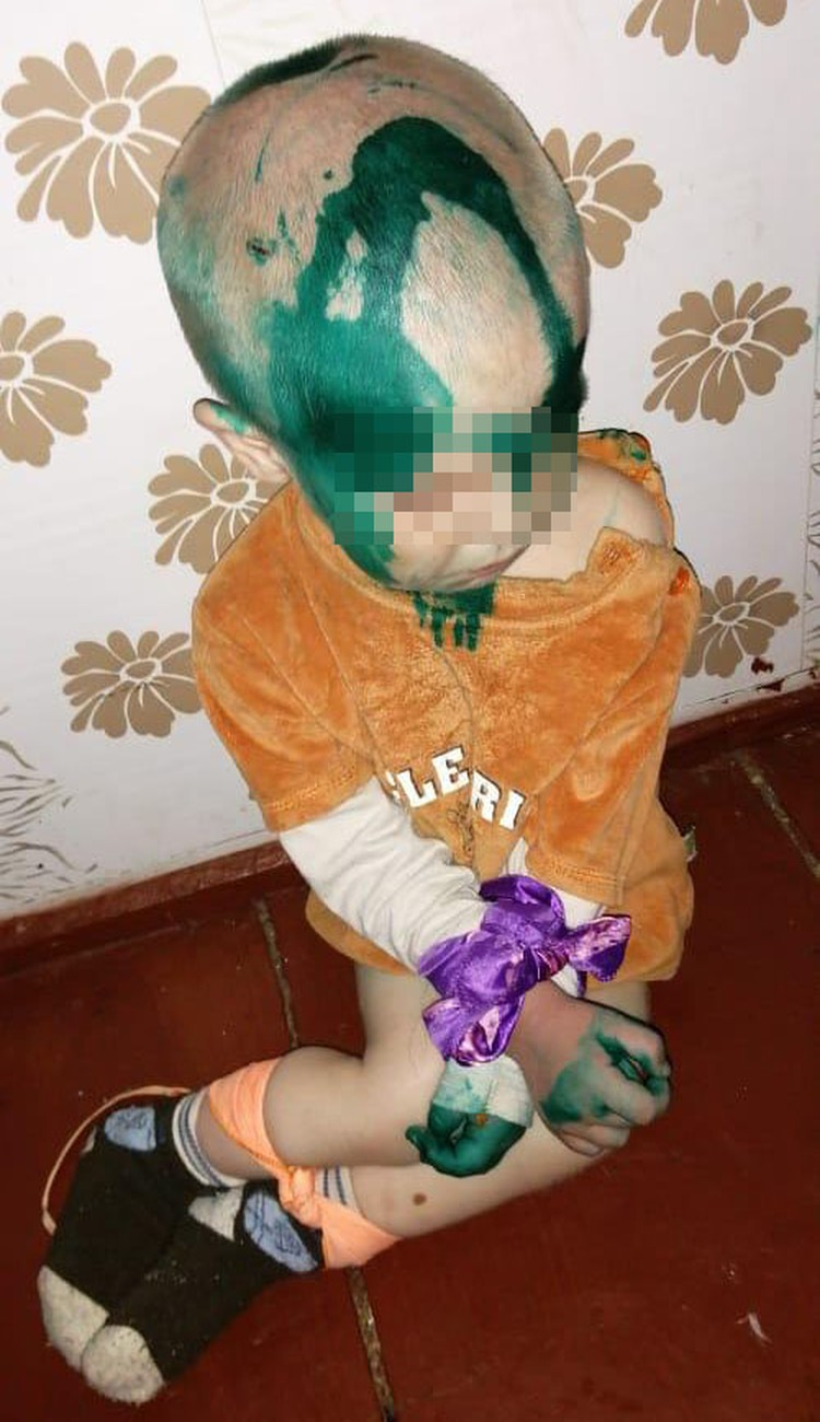 Малышу связывали руки и ноги.