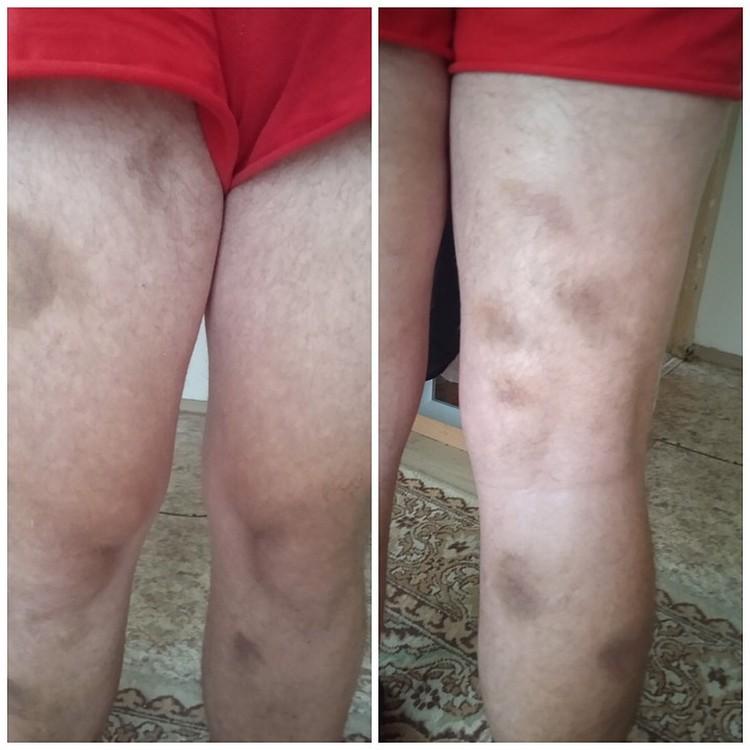 """Так выглядели ноги больного мужчины после нападения """"детишек""""."""
