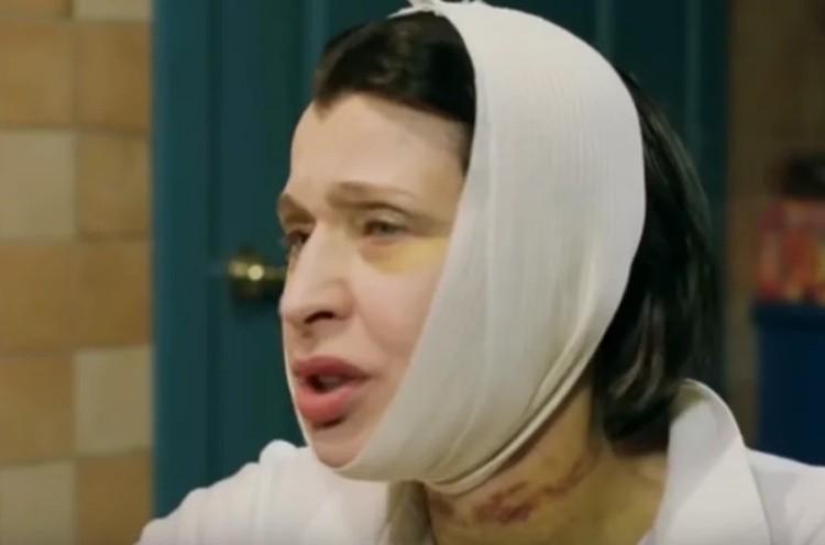 Артистка призналась, что после операции мучилась от боли. Фото: кадр видео.