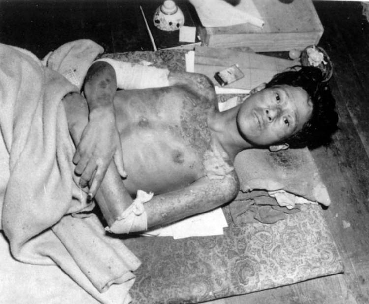 Молодой человек, пострадавший от взрыва атомной бомбы в Нагасаки