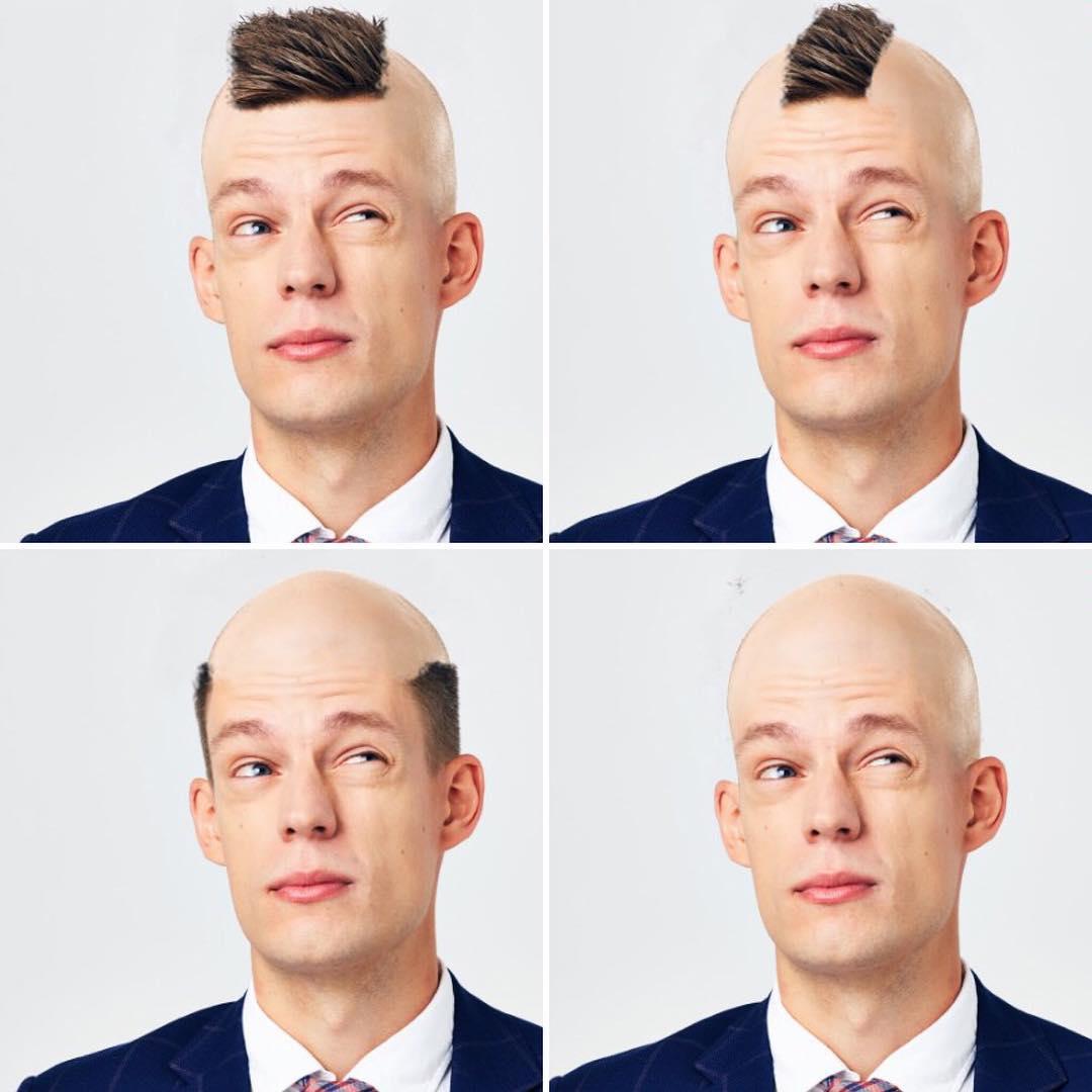 Вчера, когда было 15,9%, я планировал делать со своей головой что-то вроде такого. Но - надо же! - выиграл спор. Что случилось сегодня, вы в курсе.